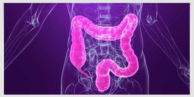 JAPÓN: Las colonoscopías pueden   reducir el riesgo de cáncer en un 40%