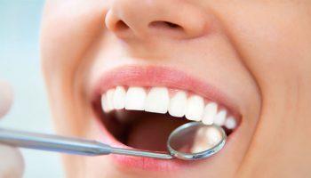 acidos-dientes-581×388