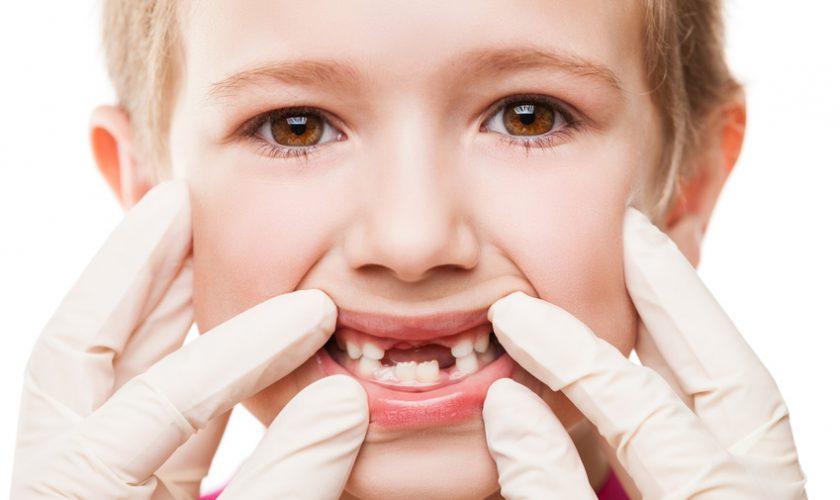 dents-enfants