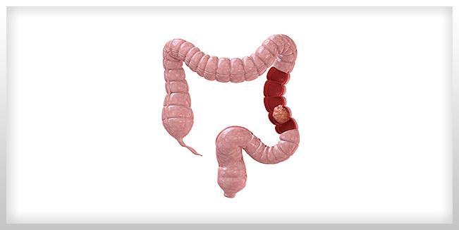 La vitamina D podría aumentar la supervivencia en el cáncer de colon, halla un estudio