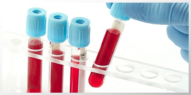 Examen de sangre podría predecir el regreso del cáncer de mama: estudio