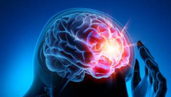 epilepsia ataques