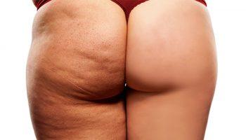 celulitis abdomen hinchado