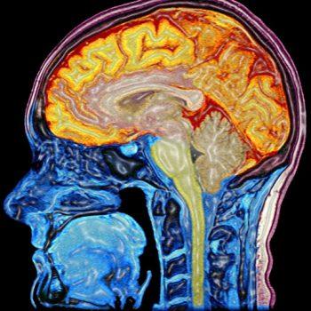 cerebro mente grasa